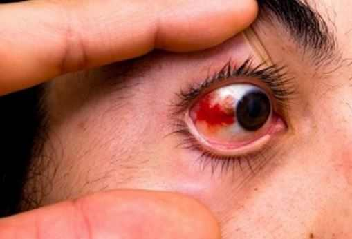 Sore Eyeball to Touch, Pain, Feels Bruised, Headache