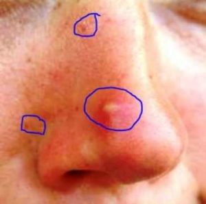 Infected Pore on Face, Nose, Face Treatment and Symptoms