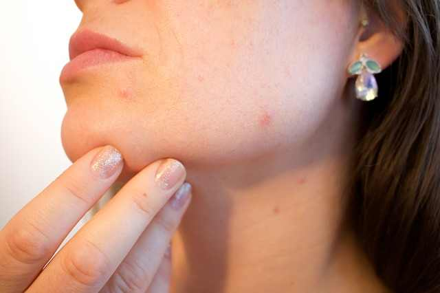 The face is the the most sensitive part when it comes to infected pore on face