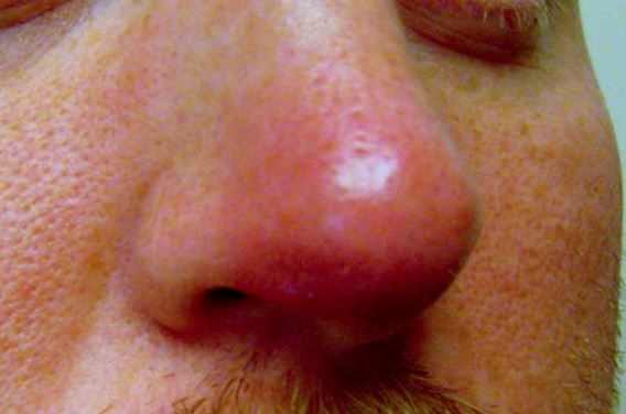 Swollen Nose on Tip, Inside, Causes and Treatment, Remedies