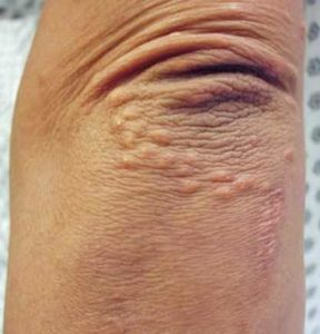Bumps on Elbows Causes & How to Get Rid of Small Red, White Elbow Lumps