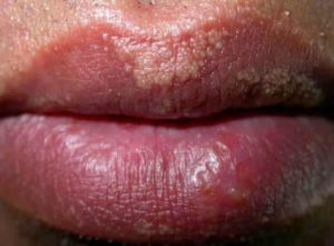 How to Get Rid of Small Fordyce Spots on Lips, Treatment, Natural Cures