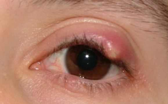 Pimple on eyelid