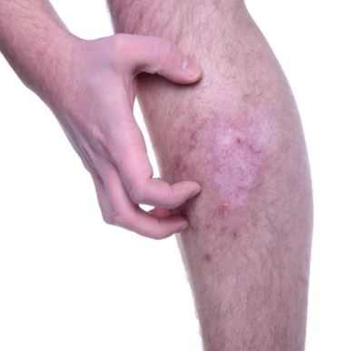 Itchy legs after shaving, get rid stop itching fast