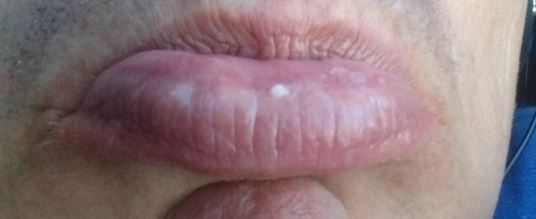 White spot on lower lip