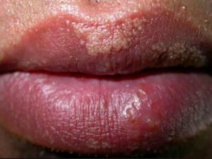 White Spots on Lips: Pictures & How to Get Rid of The Dots