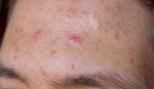 How to Get Rid of White Bumps on Forehead that are Small, Itchy Lumps Won't Go Away
