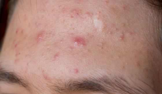 small raised bumps on forehead #11