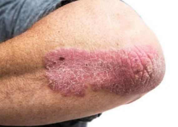 Eczema on elbows
