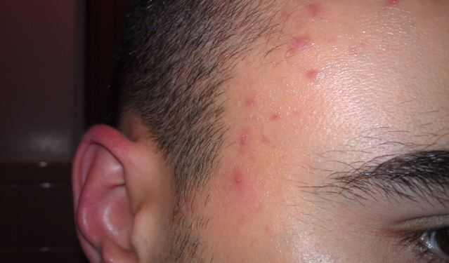 Bumps on Forehead, Small Spots, Get Rid of Little Hard ...