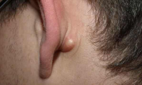 How to get rid of sebaceous cyst behind ear