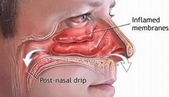 How to Stop Post Nasal Drip Fast with Home Remedies and Natural Cures