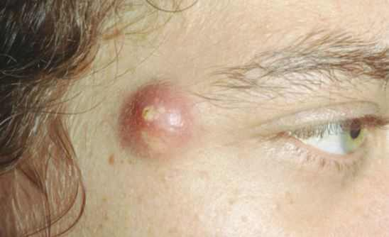 Image Gallery Infected Cyst On Face