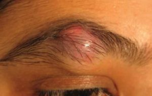 Ingrown Eyebrow Hair with Cyst, Bump, Infection and How to Remove
