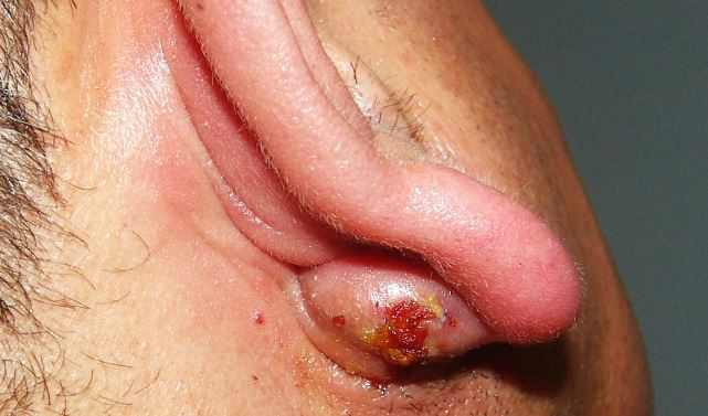 how to get rid of sebaceous cyst Infected sebaceous cyst