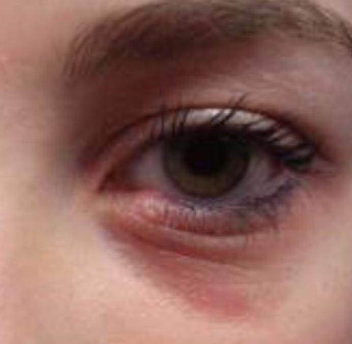 Inflammation like rings under eyes.