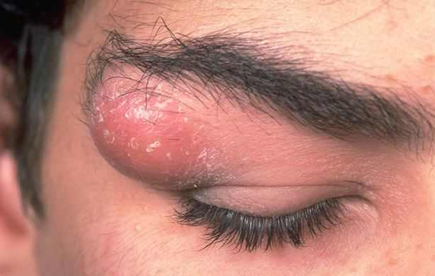 Facial skin cysts