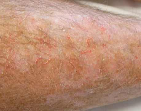 Dry skin on legs will leave your skin irritated, making it itchy