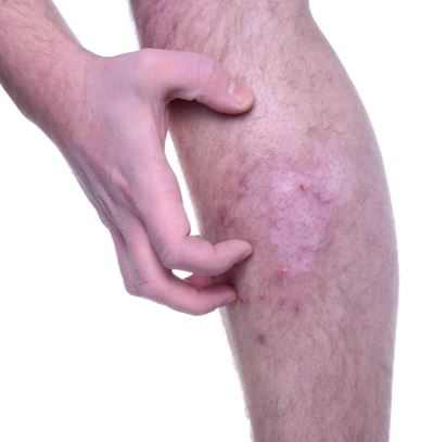 Itching legs can be a sign of diabetes or thyroid problems