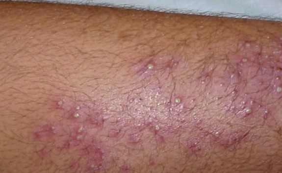 that red itchy they problems rings can be you patches are and skin what cauces know scaly health sorted ringworm eczema when