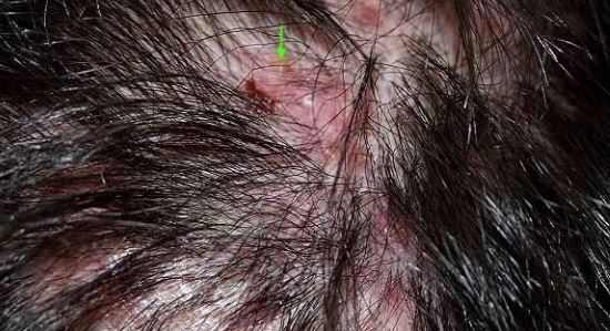 Scalp folliculitis may result from infected hair follicles