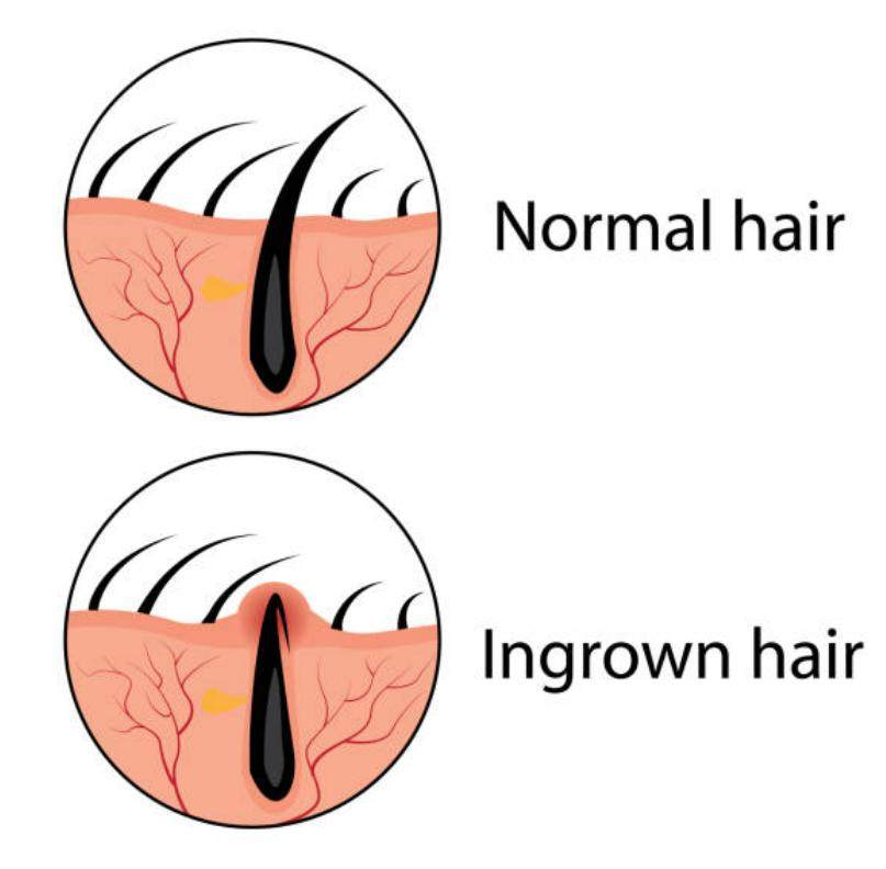 normal hain vs ingrown hair, sumptoms of infection