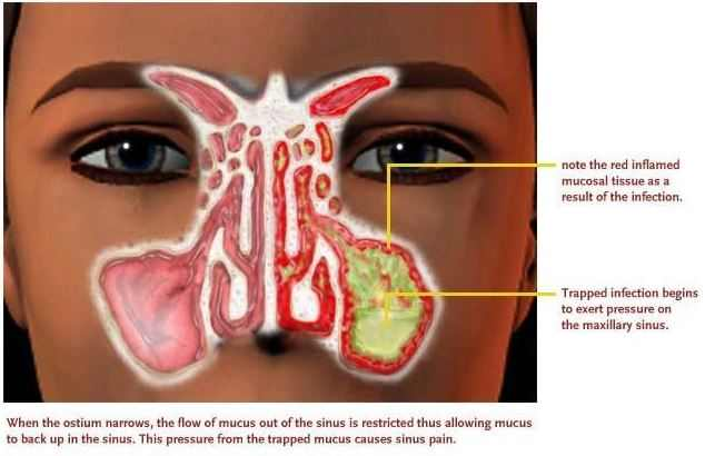 Thick Green Mucus in Nose and Throat Dark Green Snot Meaning and Remedies