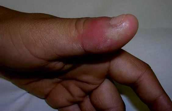 Swollen Thumb Pad, Joint or Knuckle Causes and Treatment for Thumb Swelling