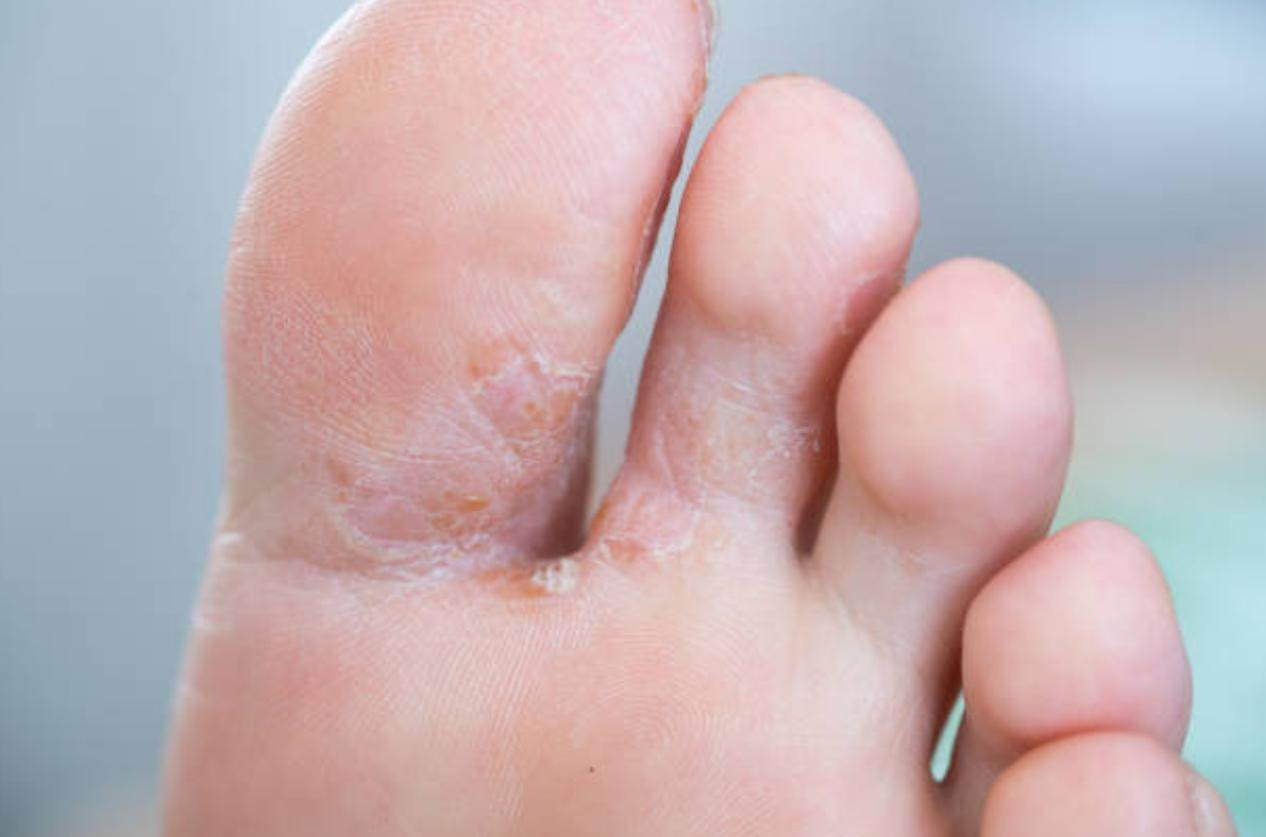 Athlete's foot causing peeling skin and toes