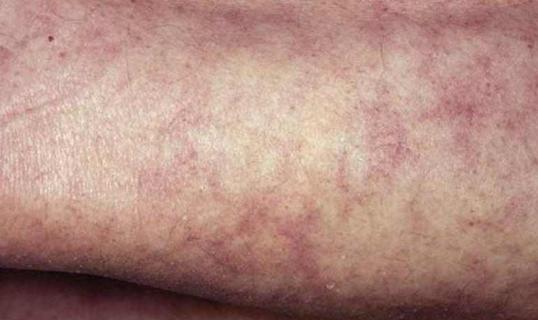 Mottled Skin Causes, Pictures, Baby Mottled Skin on Legs, Arms