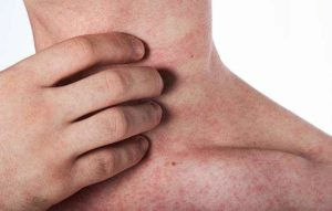 Amoxicillin Rash Allergic Reaction, Pictures, Mono in Baby, Adults, Treatment