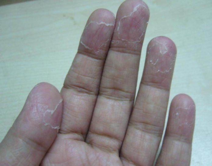 Peeling Fingertips Causes and How to Get Rid