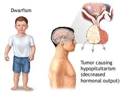 Growth Hormone Deficiency Symptoms, Causes and Treatment
