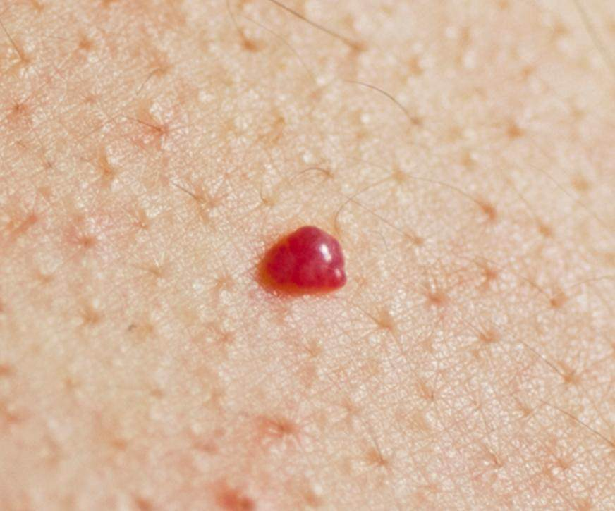 How to Get Rid of Red Moles on Scalp Skin, Body