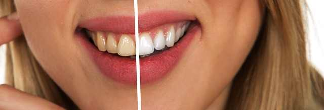 How to use apple cider vinegar for teeth whitening