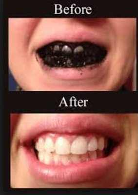 before and after using activated charcoal for teeth whitening
