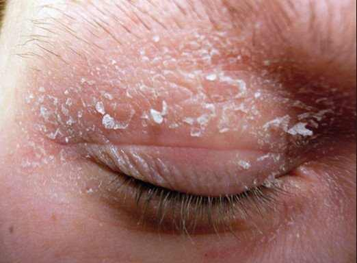 Dry skin around eyes and eyelids