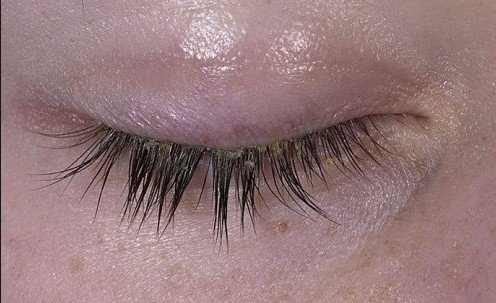 Dry skin on eyelid symptoms