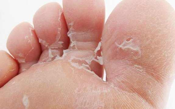 Peeling Skin on Feet No Itching Causes and Home Remedies for Peeling Toes and Feet