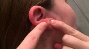 Painful Pimple on Earlobe, Causes, Won't Go Away and How To Get Rid