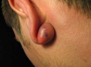 Earlobe Cyst, Causes, Symptoms, Treatment and How to Pop