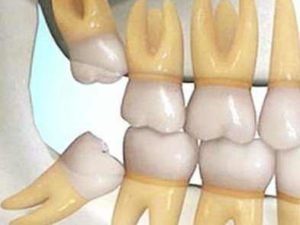 Impacted Wisdom Teeth, Causes, Meaning, Effects, Treatment and Removal