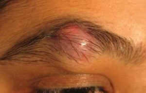 Cyst on Eyebrow, Small, Pictures, Causes, Get Rid, Treatment and Removal