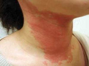 Rash on Neck, Very Itchy, In Baby, Causes, Pictures, Treatment and How to Get Rid