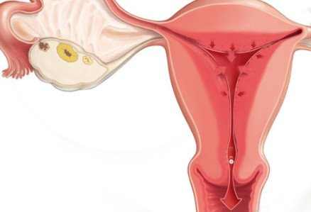 How to Stop Your Period, Fast, Quickly, Overnight, Once It Starts