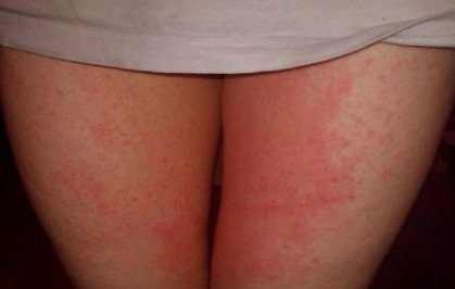 Itchy Inner Thighs, Causes, No Rash, STD, Pictures, Males, Females
