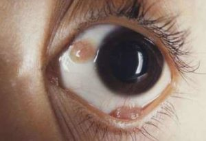 Bump on Eyeball, Causes, Symptoms, Pictures, Under Eyelid, Get Rid