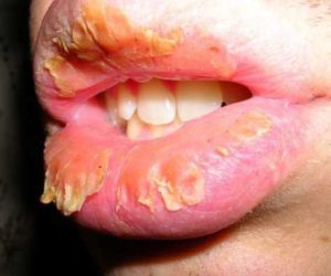 Crusty Lips, Dry, Chapped, Causes, Symptoms & Treatment