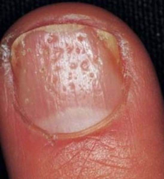 Dents on nails