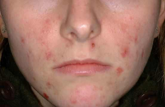 Pimple Scabs: How to Heal Popped Acne Crusts on Face Fast